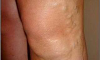 Home Remedies for Treating Varicose Veins