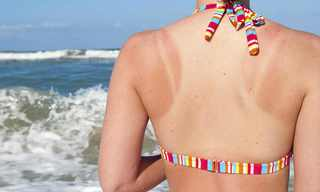 The Best Natural Remedies for a Sunburn