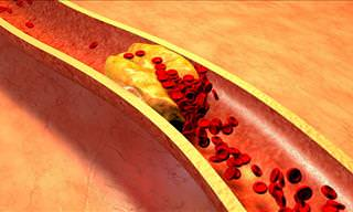 Bad Eating Habits For Cholesterol