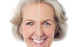 Wrinkles: Treatments and prevention