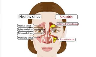 7 Reasons Why You Might Be Having Frequent Sinus Infections