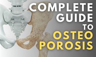 Everything You Wanted to Know About Osteoporosis