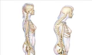 Explaining Postural Kyphosis and How to Fix It