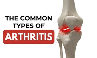 This Guide Will Teach to Identify 8 Types of Arthritis
