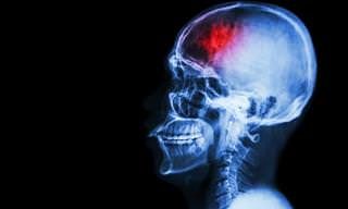 Brain Inflammation Might Lead to Depression