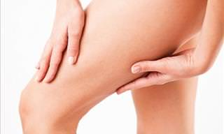 How to Prevent and Treat Inner Thigh Chafing
