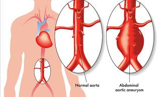 All You Need to Know About Aortic Aneurysms
