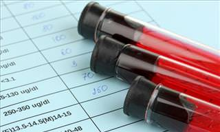 10 Facts You Didn't Know About Blood Tests