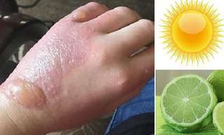 Warning: Don't Combine Lime Juice and the Sun