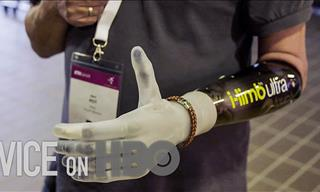 These Bionic Limbs Are Assisting People with Disabilities