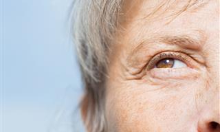 10 Natural Ways to Get Rid Of Eye Wrinkles