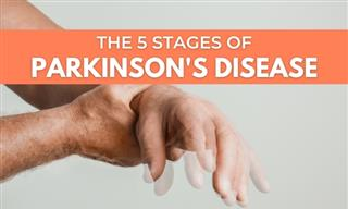 The 5 Stages of Parkinson's Disease - Signs and Symptoms