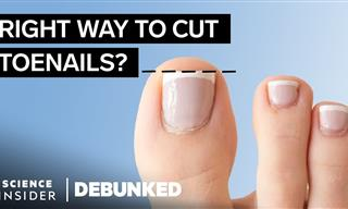 What Really Causes Bunions? - Foot Health Myths Debunked