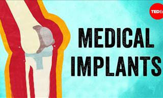 Why Medical Implants Have to Be Replaced Regularly