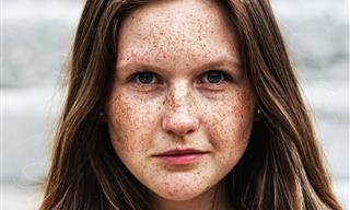 These People Found Out Something Shocking About Their Skin