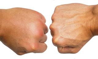 The Most Common Causes & Solutions For Hand Swelling
