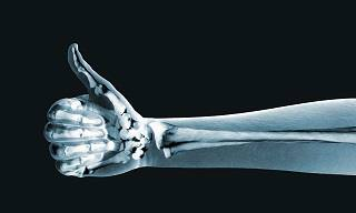 These 10 Tips Will Keep Your Bones Stronger for Longer