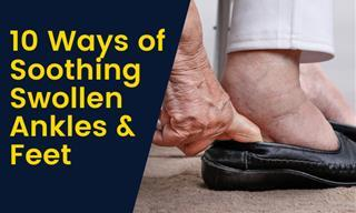 How to Treat Swollen Legs, Ankles and Feet
