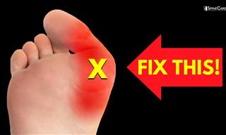The BEST Exercises to Relieve Bunion Pain