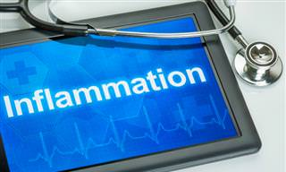 What Do You Know <b>About</b> <b>Inflammation</b>?